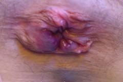 Αιμορροϊδική κρίση - Αιμορροΐδες 4ου βαθμού