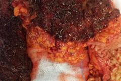 Ψευδοπολύποδες και βλεννογονικές αλλοιώσεις ελκώδους κολίτιδας