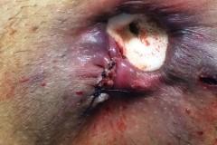 Τελικό αποτέλεσμα μετά αιμορροϊδοπηξία με HAL και ελαχίστη εκτομή υπολειπόμενου όζου