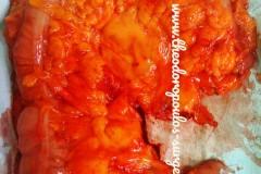 Εκτεταμένη δεξιά κολεκτομή για καρκίνο ηπατικής καμπής